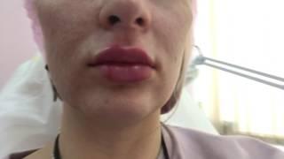 Контурная пластика скул и губ