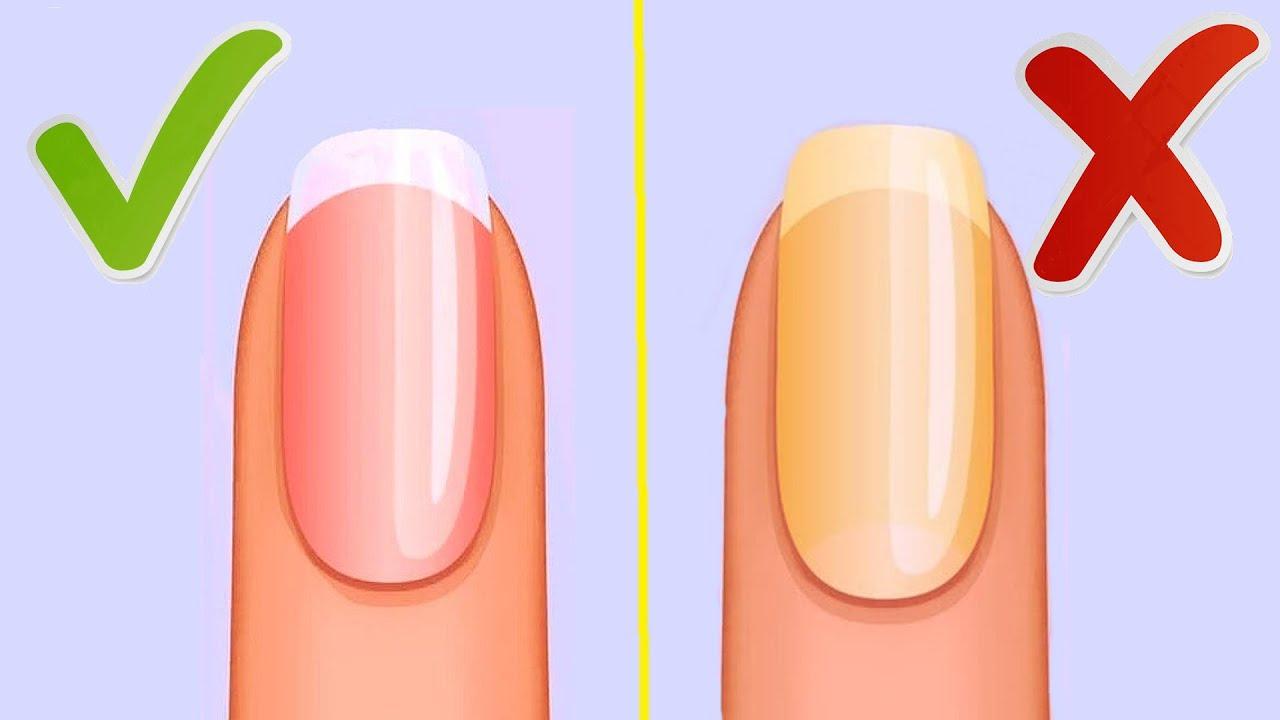 Желтые Ногти: Причины, как Избавиться от Желтизны Ногтей и Вернуть им Здоровый Цвет