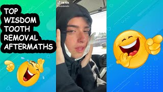 TOP Wisdom Teeth Removal Funny Aftermaths | 2020 Compilation