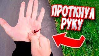 Как я пробил руку до крови