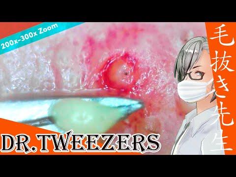 321 [200x Zoom] Liquid acne Dr. tweezers 毛抜き先生の角栓や毛根