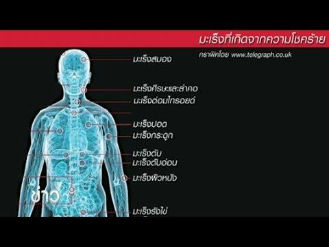 ผลวิจัยชี้มะเร็งกว่า 22 ชนิดไม่ได้เกิดจากพฤติกรรมการกิน-ใช้ชีวิต