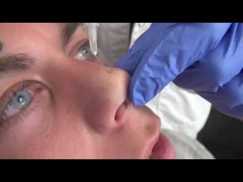 Коррекция кончика носа препаратом Radiesse