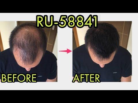 the-#1-reason-why-i-don't-use-ru58841-for-treating-hair-loss