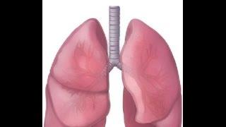 BREATH SOUNDS- BRONCHITIS