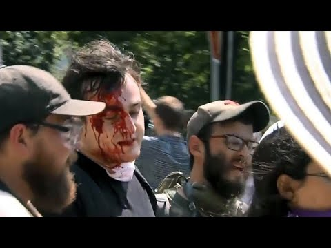 White supremacist rally turns deadly in Charlottesville, Virginia
