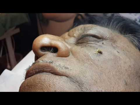 LAMPROBE removal of Very Large Open Pore on Male Cheek by Janine Thomson