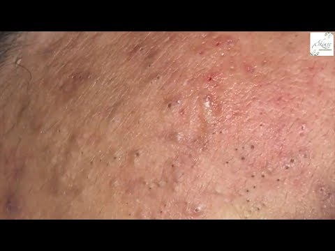 Tokyo Acne Treatment Blackhead Extractions Popping #46