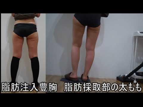 脂肪注入豊胸の手術後 吸引部の足の状態 40