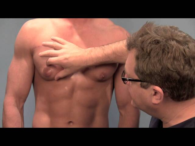 Causes of puffy chest in men, also known as gynecomastia, explained by Dr. Steven Teitelbaum