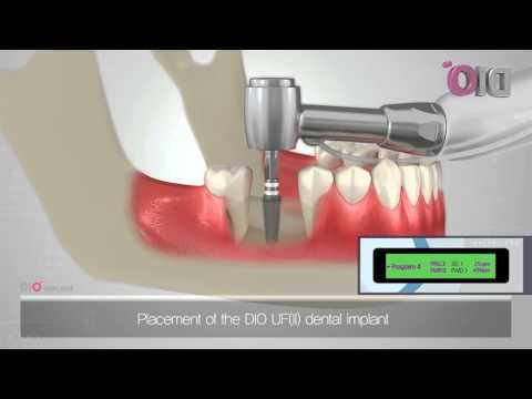 how it works? dental implant
