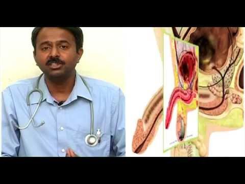 Prostate Gland Problems & Diabetic Problems