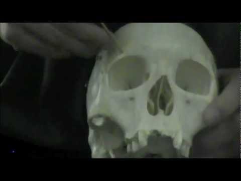 Skull-Cranial and Facial Bones