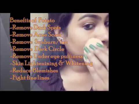 remove-dark-spots-in-just-7-days-|-potato-juice-&-potato-facial-mask-for-skin-whitening