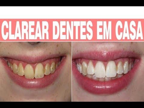 Como Clarear Os Dentes Receita Caseira E Facil Youtube