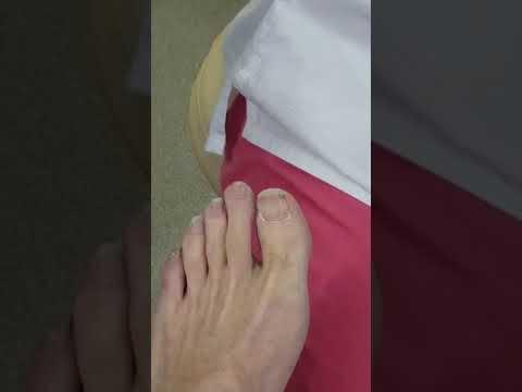 коррекция вросшего ногтя - YouTube
