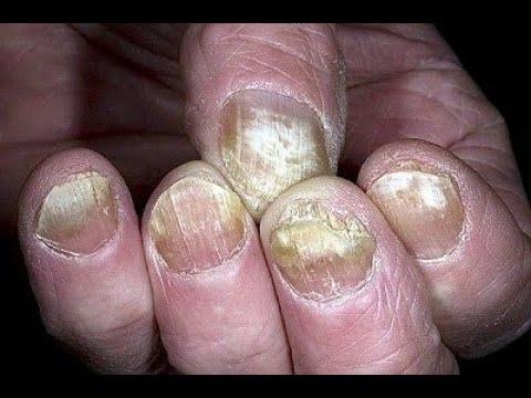 ★ Лечение грибка ногтей на ногах. Как избавиться от грибка ногтей народными средствами. Онихомикоз