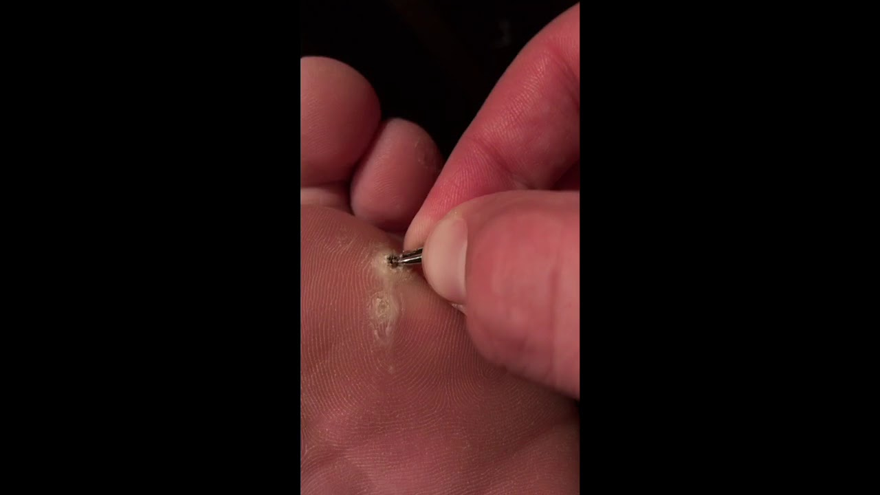 Day 37 I Tear The Middle Of The Plantar Wart Out The Compound W Is