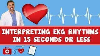 Interpreting EKG rhythms in 15 seconds or less. Part 1