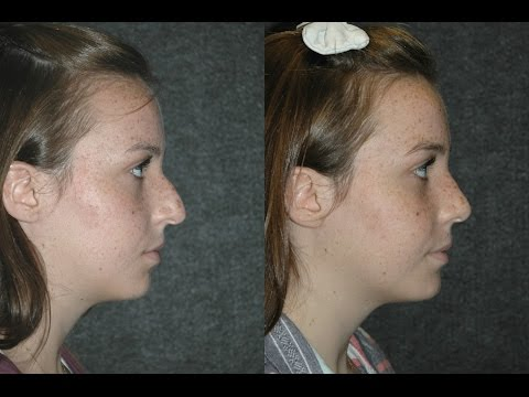 Rhinoplasty NYC for 16 Year Old Teenage Girl Actress | Top Rhinoplasty Surgeons Dr Jacono