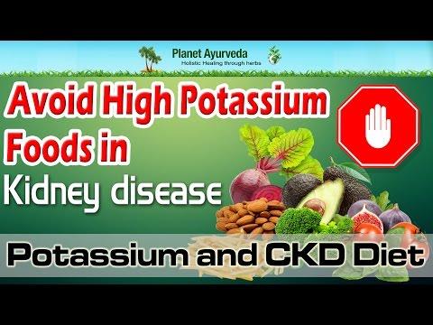 Avoid High Potassium Foods in Kidney disease | Potassium and CKD Diet