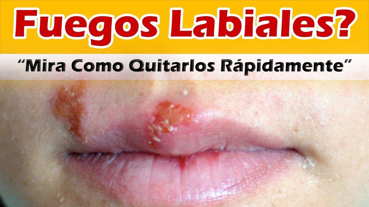 remedio casero para herpes en el labio