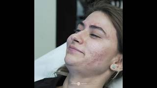 Botox Injections for Female   Crow's Feet   Fine Lines and Wrinkles   Beverly Hills, CA