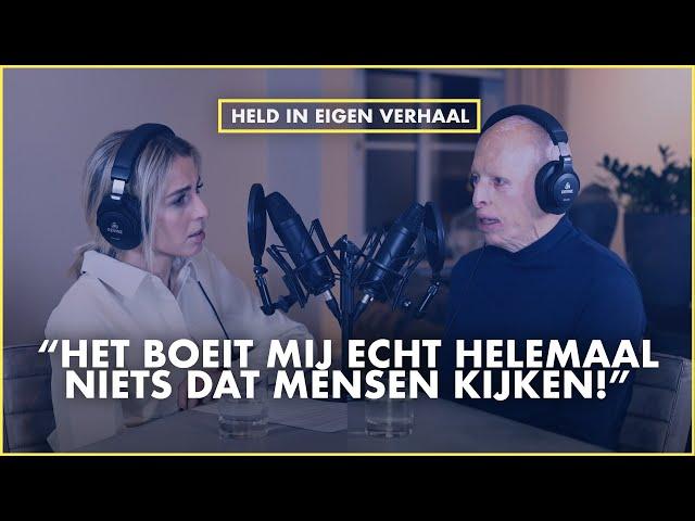 Held in eigen verhaal, Voor 67% VERBRAND bij de brand in VOLENDAM