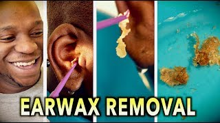"ENDLESS EARWAX REMOVAL! | Dr. Paul (feat. Themba ""my son"")"