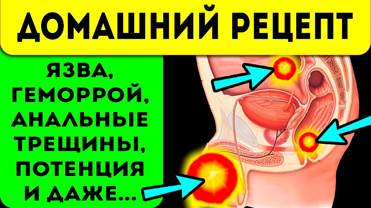 Простатит и язва термекс аппарат для лечения простатита
