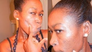 NATURAL REMEDIES TO TREAT MY ACNE, ACNE SCARS and SKIN DISCOLORATIONS