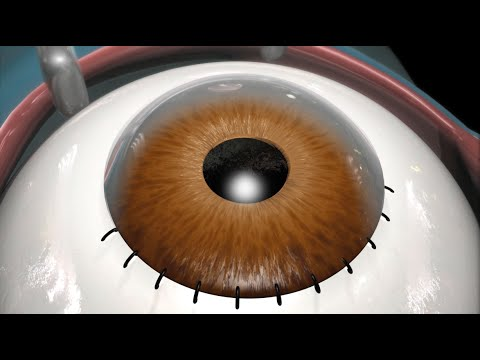 c461c14ef89 Cataract Surgery (2009) - YouTube