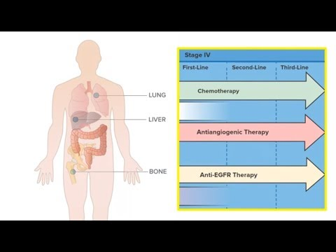 Chemotherapy and Precision Medicines:::Personalising Treatment