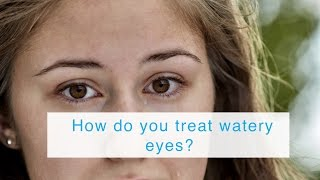 How do you treat watery eyes?