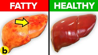 Foods You Should Eat To Prevent and Reverse a Fatty Liver
