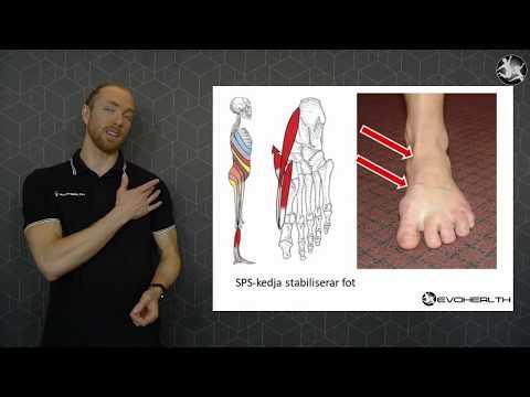 Spiral stabilisering - fotbesvär