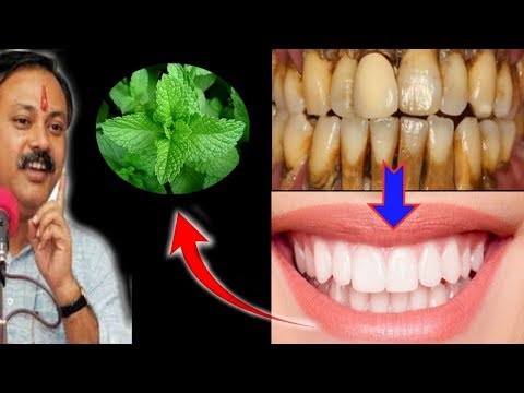 Magical Teeth whitening home remedy, get whitening teeth at home in 5 minutes