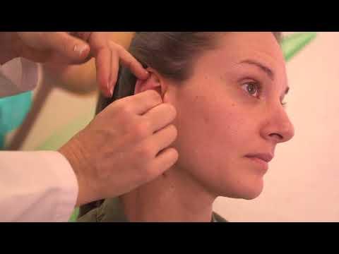 Tratamiento otoplastia con Earfold completo en clínica EónCLINIC, Dra.Marta Payá
