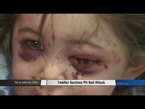 Toddler attacked by pit bull in