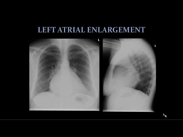 Introduction to Chest Radiology
