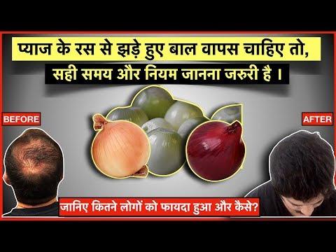 how-to-use-onion-juice-for-hair-growth?-प्याज-का-रस-कब-और-कैसे-लगाना-है?