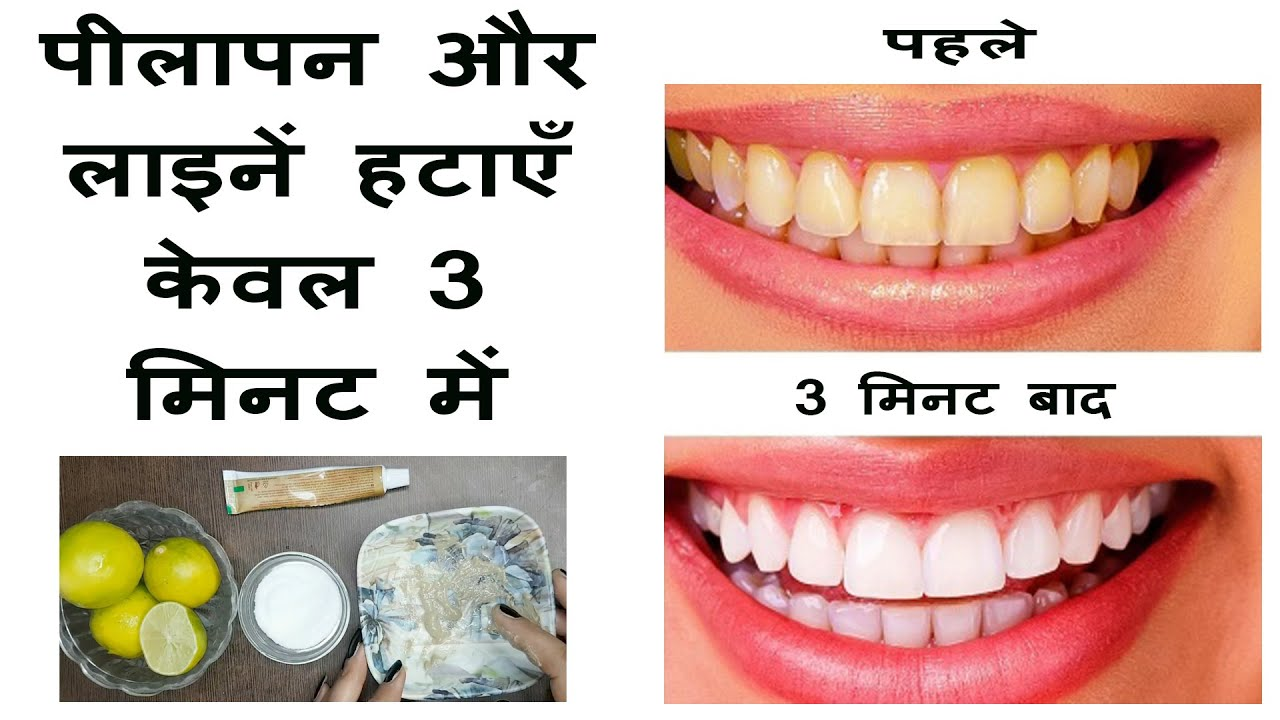 How To Whiten Teeth At Home In 3 Minutes Magical Teeth Whitening