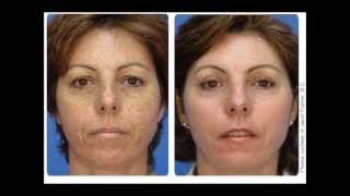 Skin rejuvenation with the sciton laser, bbl