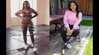 Empowered Teen Proud of Prosthetic Leg | SHAKE MY BEAUTY