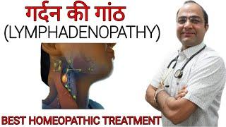 Swollen lymph nodes | Lymphadenopathy |  गर्दन की गाँठ | Neck nodes swelling