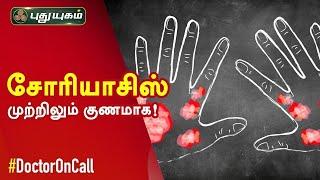 Doctor On Call 29-08-2020 Puthuyugam Tv