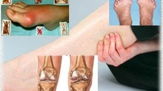 Боли в ногах 2 Суставы