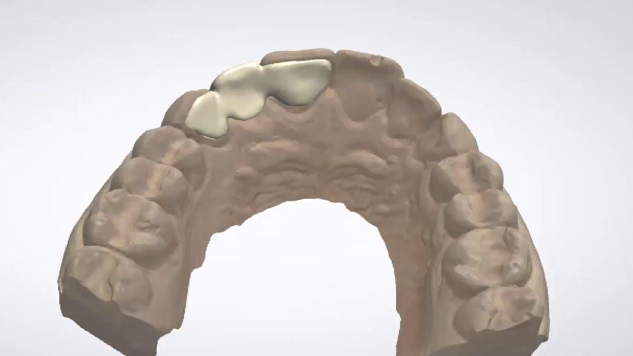 3Shape Dental System - Maryland Bridge Design