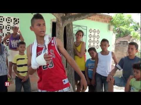 Joven de 13 años es atacado por babilla en Palmar de Varela