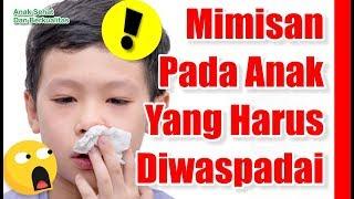 Penanganan Awal & Tanda Bahaya dari Mimisan / Epistaksis.
